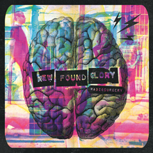 RADIOSURGERY/NEW FOUND GLORY